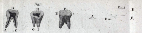 Detail from Plate V sQH271.L2H7 showing a whole human molar tooth (Fig. 1 A-I) and the 3 types of 'animalcule' observed in the sample scraped from Leeuwenhoek's teeth (Fig. 3 A, B and E, with the 'whirling' motion of type B indicated by the dotted line at C and D).
